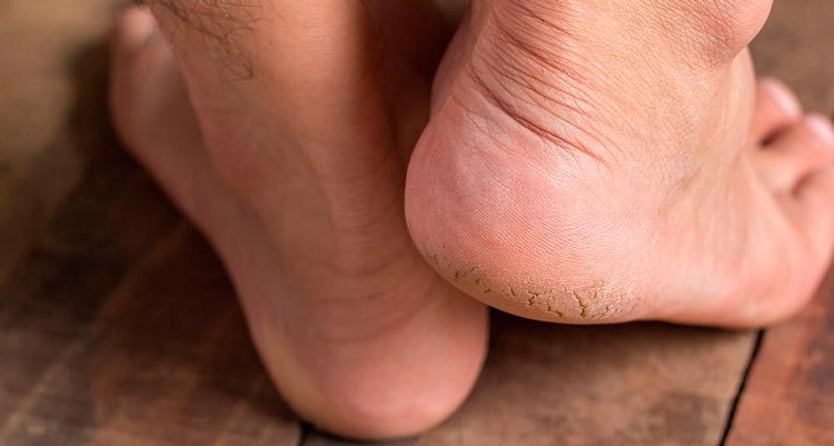 Calcanhar de maracujá: a doença que apavora a net