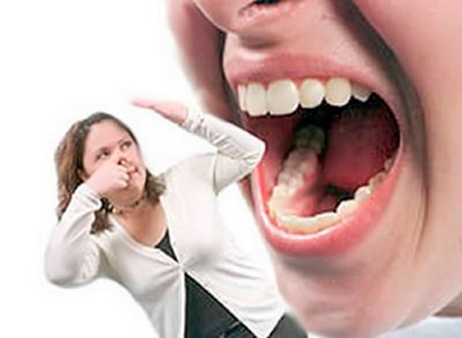 Apesar da grande quantidade de causas, o mau hálito pode ser evitado – Foto: Reprodução