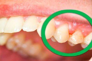 A boca seca é outro fator de risco para as danadas aparecerem – Foto: Reprodução