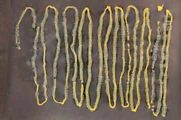 Verme de 2,8m do tipo tênia retirado do ânus do paciente – Foto: Singapore General Hospital's Department of Microbiology/ S1 Notícias