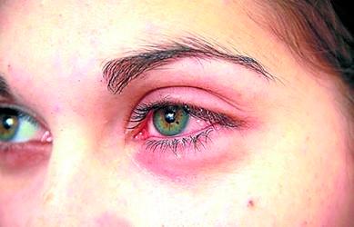 Fungos e vírus colocam em risco a saúde ocular, causando conjuntivite – Foto: Reprodução