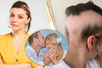 Mulher perde quase todo o cabelo devido ao estresse pré-casamento