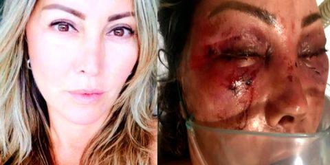 Mulher é agredida durante quatro horas em primeiro encontro