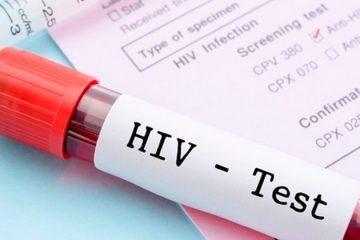 Vacina contra o HIV será testada em humanos pela primeira vez no Brasil