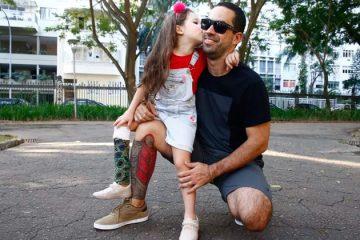 Pai tatua prótese na perna para ficar igual à filha