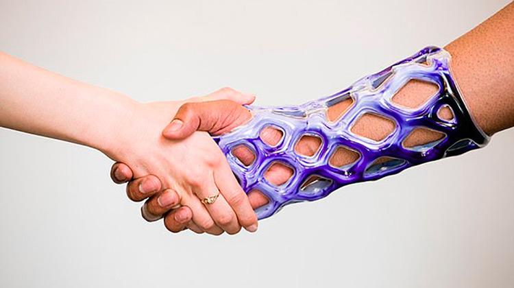 Molde à prova d'água pode substituir gesso em quem quebrou o braço