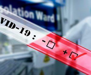 Quanto tempo a pandemia de coronavírus pode durar