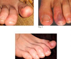 Lesões nos pés são encontrada em pacientes com covid-19