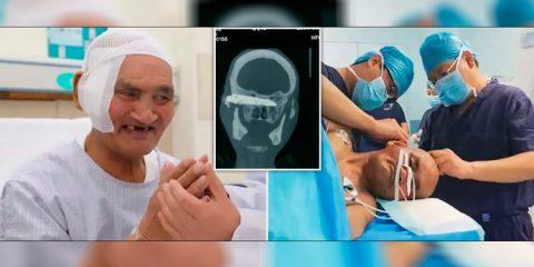 Médicos retiram faca alojada na cabeça de um homem há 26 anos